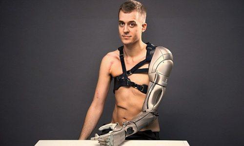 bionic 5